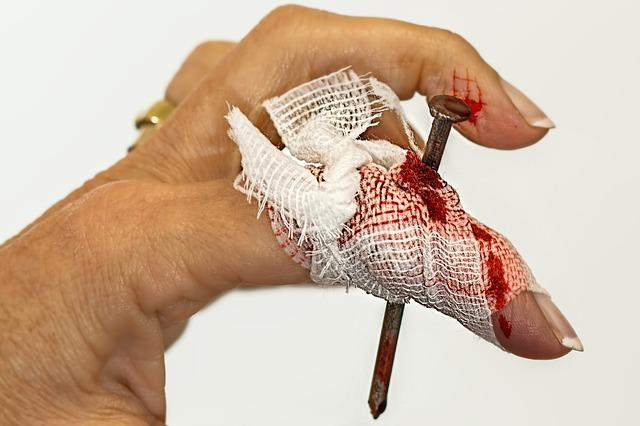 Bibi, törés, horzsolás - Zúzda-jósda: Mit jelent a sérülésed? Üzenetek tudatalattidtól!