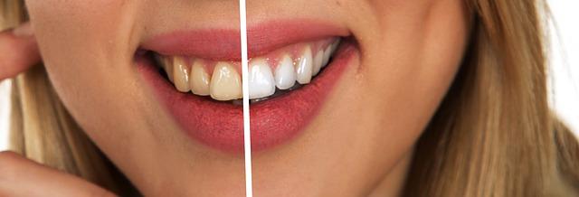 Mitől színeződik el a fogad és mit tehetsz ellene? Fájdalmas-e az esztétikai fogászat? - Létfontosságú kérdések és sorsfordító válaszok!