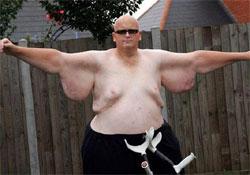 Három mázsát fogyott egy brit férfi, de még mindig 150 kiló