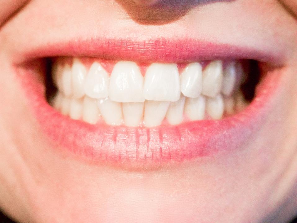 Te tudtad, hogy a fogkő eltávolítás mit eredményez